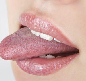 A Biting Tongue..!